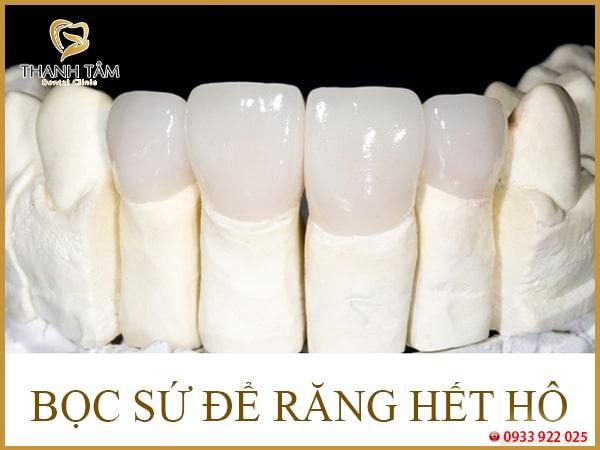 Cách trị răng hô