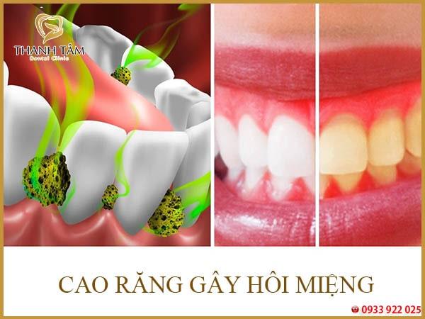 cao răng gây hôi miệng
