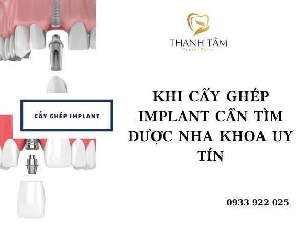 Nên cấy ghép Implant tại nha khoa uy tín