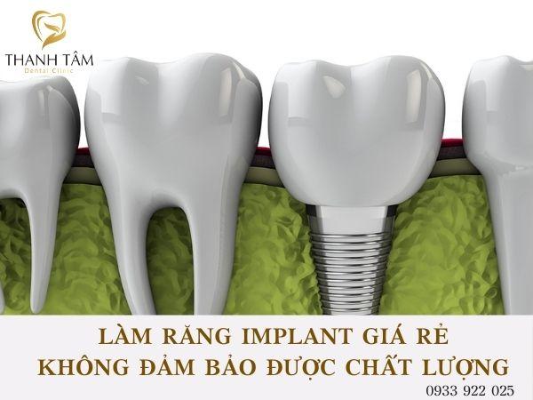 Làm răng Implant giá rẻ