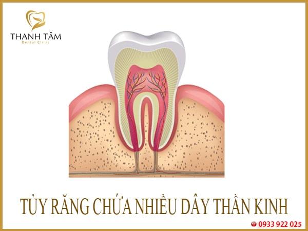 Nhiễm trùng tủy răng
