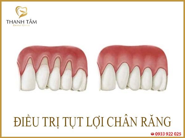 tụt lợi khi niềng răng