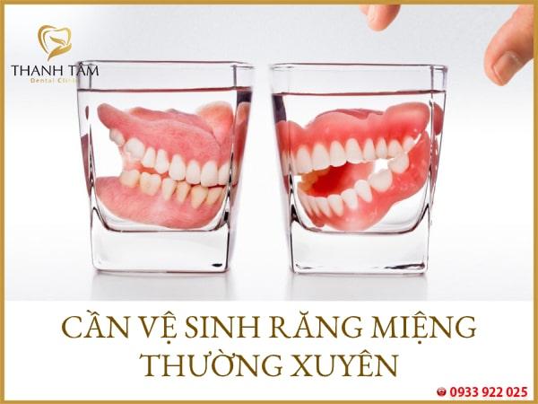 Mất nhiều thời gian vệ sinh răng miệng