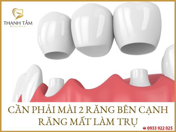 nhược điểm của làm cầu răng