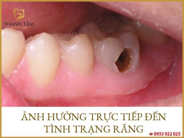Ảnh hưởng đến sự phát triển của răng