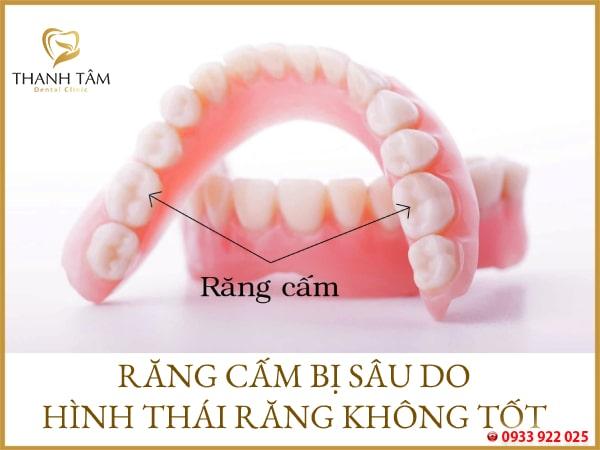 hình thái răng không tốt