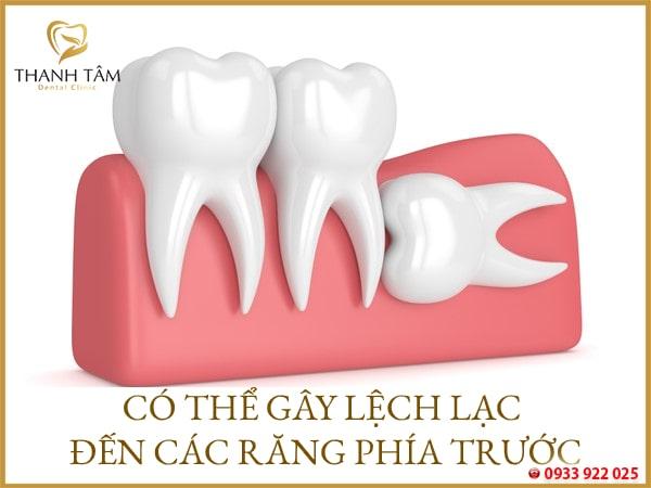 ảnh hưởng ccs răng phía trước