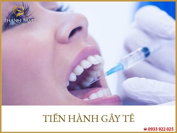 răng khôn mọc lệch 90 độ có nên nhổ không