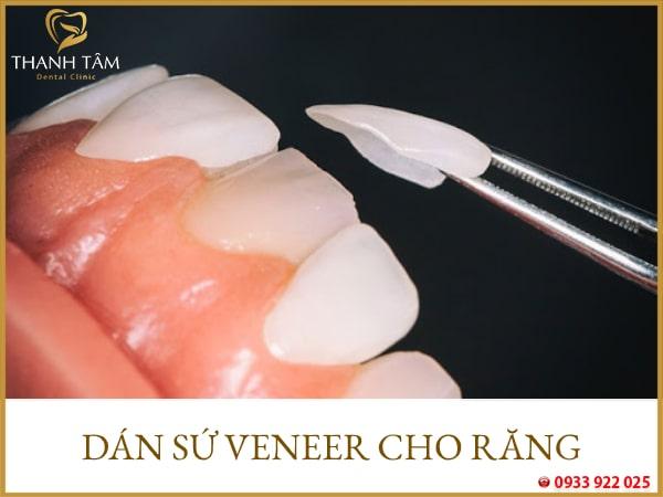 Phương pháp dán sứ cho răng