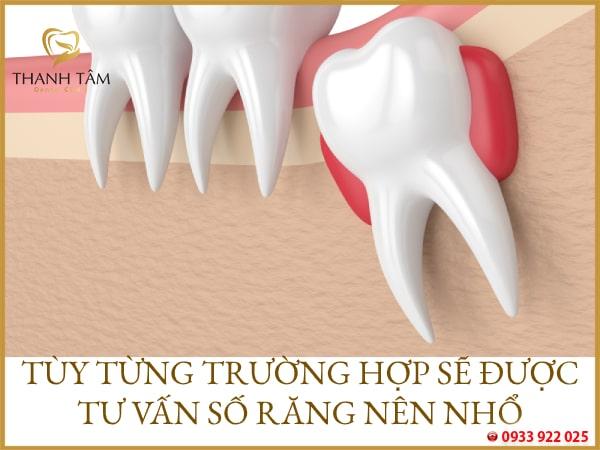nhổ 2 răng khôn cùng lúc