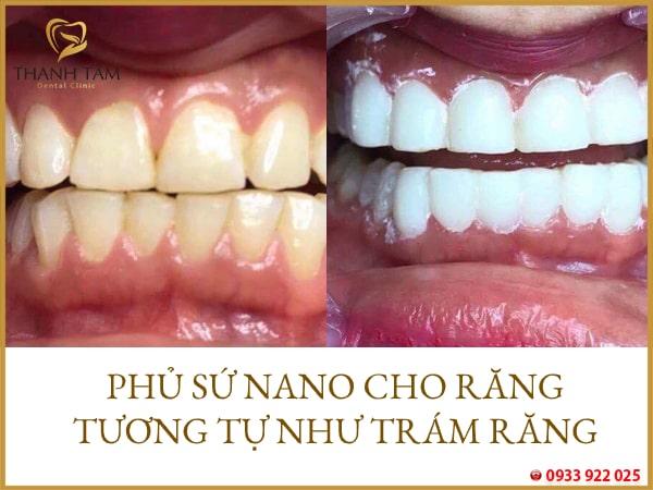 phủ sứ răng nano