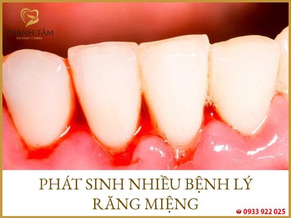 Phát sinh ra các bệnh lý răng miệng