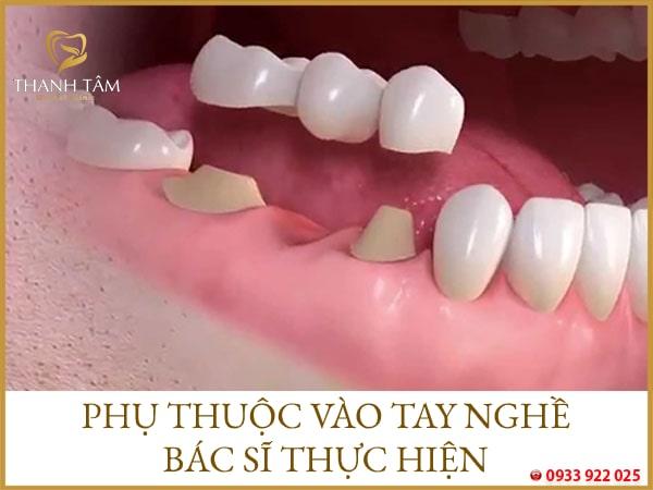 cầu răng sứ tồn tại được bao lâu
