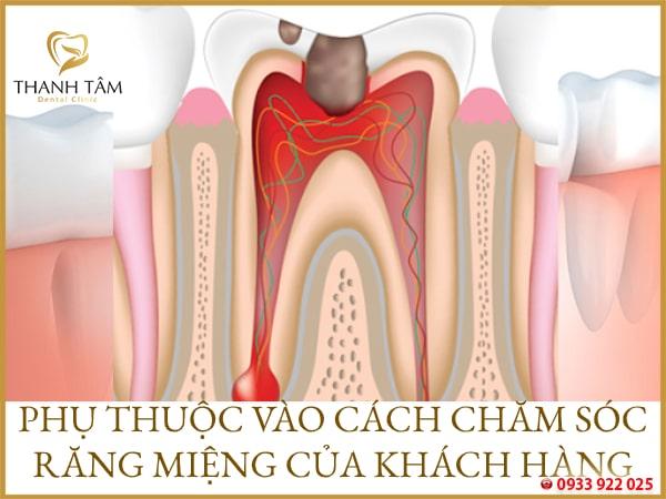 Tùy vào cách chăm sóc răng miệng