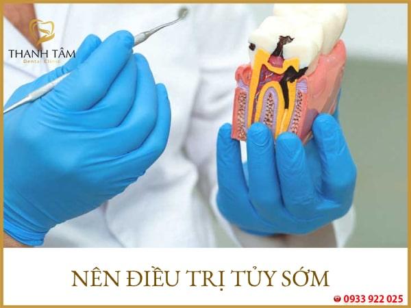 Nên lấy tủy răng sớm