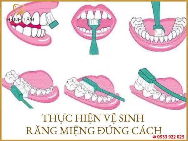 Nên vệ sinh răng miệng đúng cách