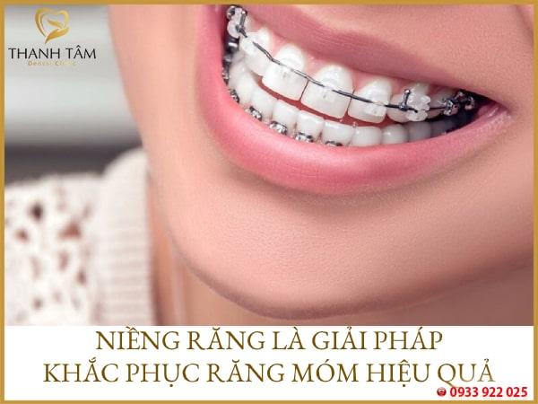 niềng răng móm hiệu quả