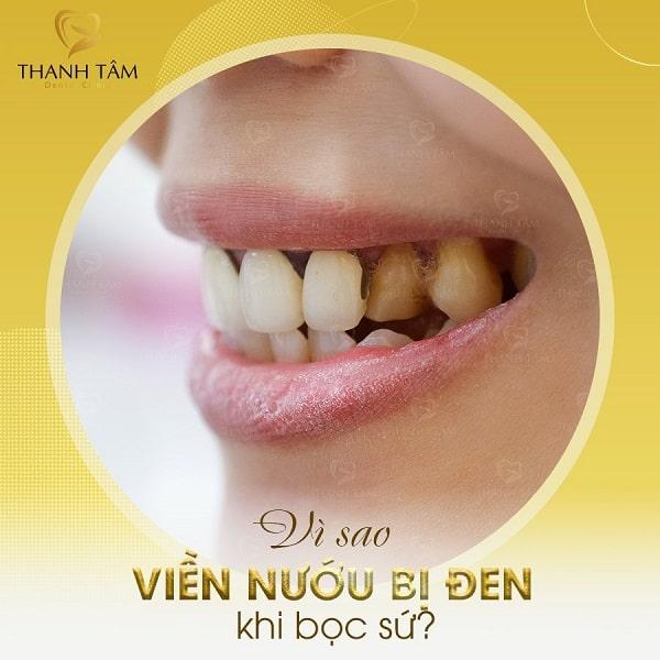 Bọc răng sứ bị đen