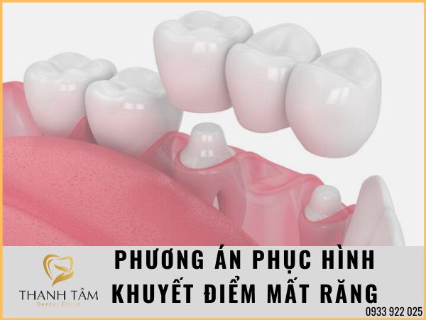 Phục hình tình trạng mất răng hiệu quả