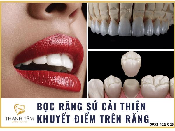 Phương pháp cải thiện tính thẩm mỹ trên răng