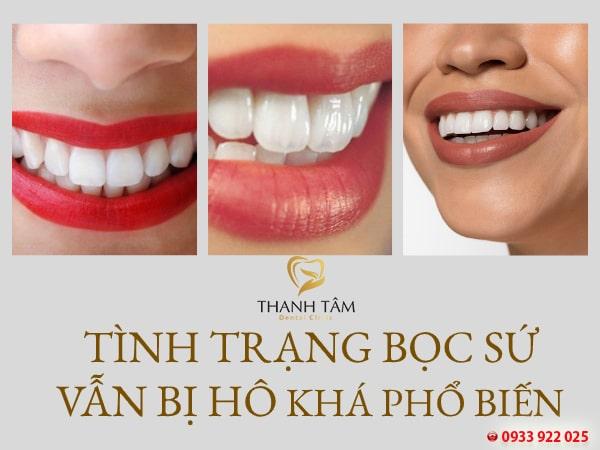 Bọc răng sứ vẫn bị hô