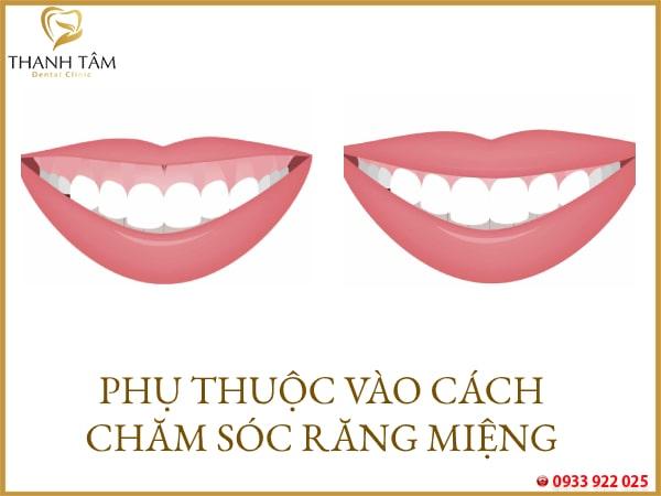 Phục thuộc cách chăm sóc răng miệng của khách hàng