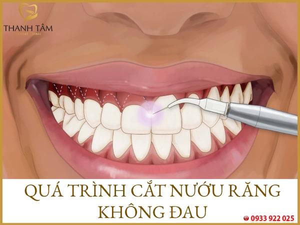 Cắt nướu răng có đau không