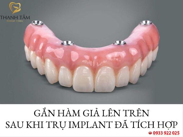 Gắn hàm giả