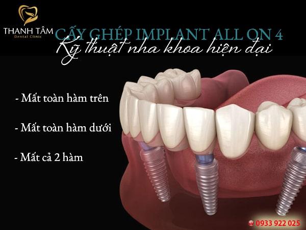 Cấy ghép Implant All on 4