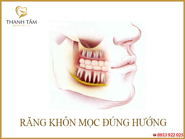 răng khôn mọc bình thường