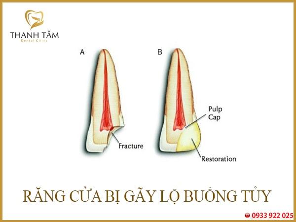 cấu tạo bên trong răng