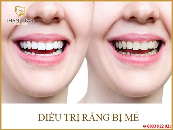 Răng hay bị mẻ