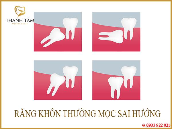 răng khôn mọc sai hướng