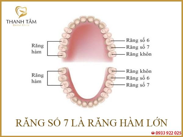 răng hàm lớn