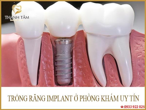 implant teeth