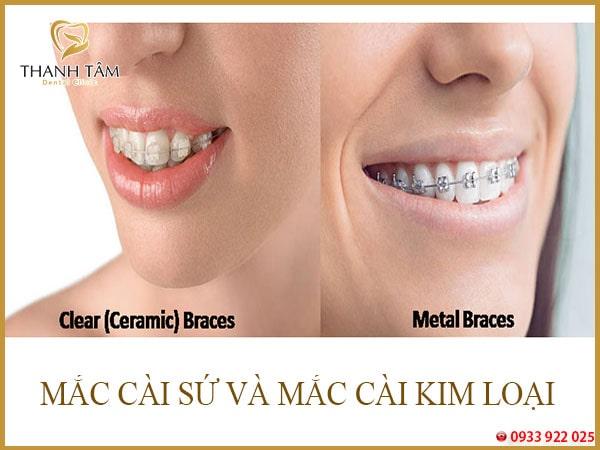 Làm thế nào để răng không bị ố vàng
