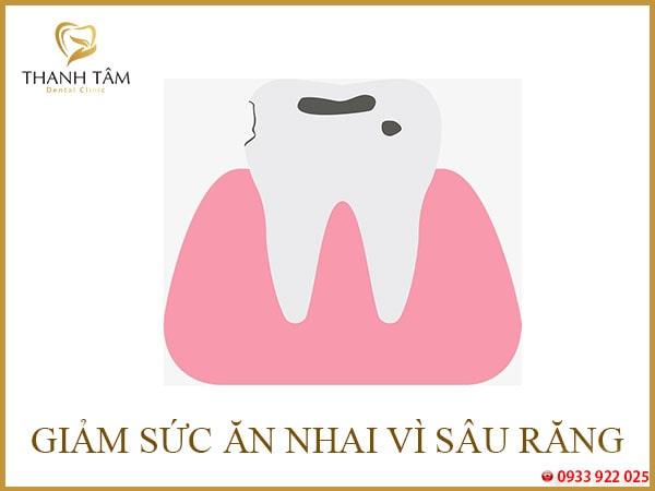 Hư răng