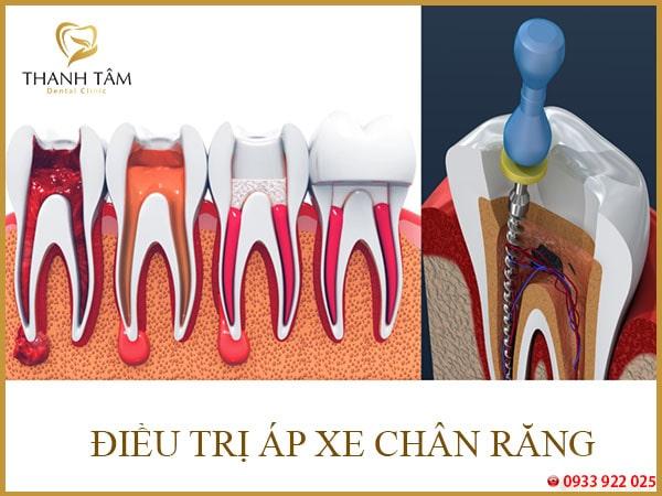 điều trị áp xe chân răng