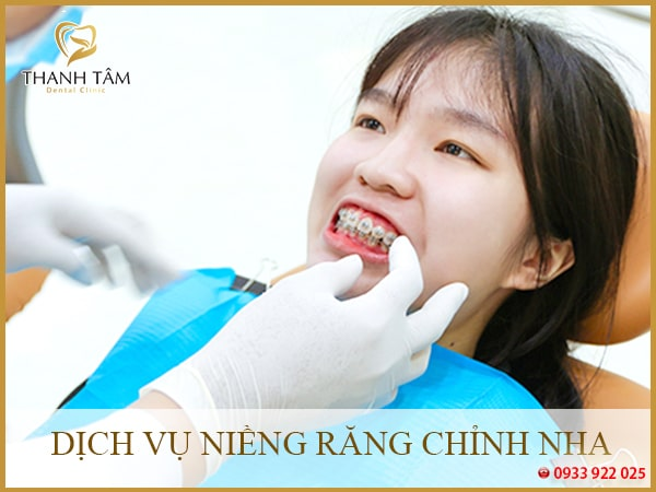 Dịch vụ niềng răng chỉnh nha tại nha khoa uy tín quận 6
