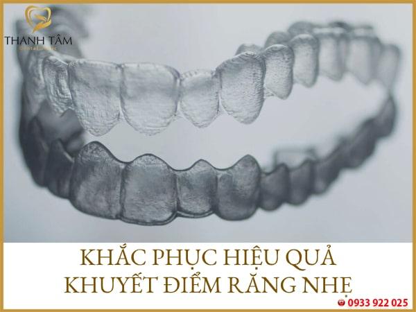 Khắc phục hiệu quả các khuyết điểm răng nhẹ