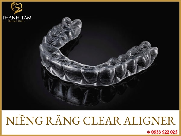 Niềng răng trong suốt clear aligner