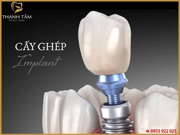 Răng Implant tồn tại bao lâu