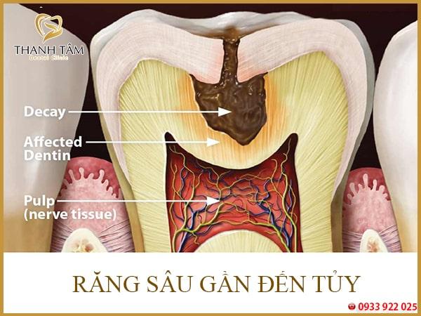 Nguyên nhân buốt răng