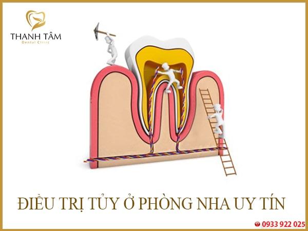 Tủy răng cửa