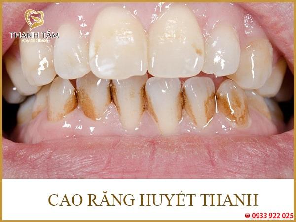 răng vĩnh viễn bị đen