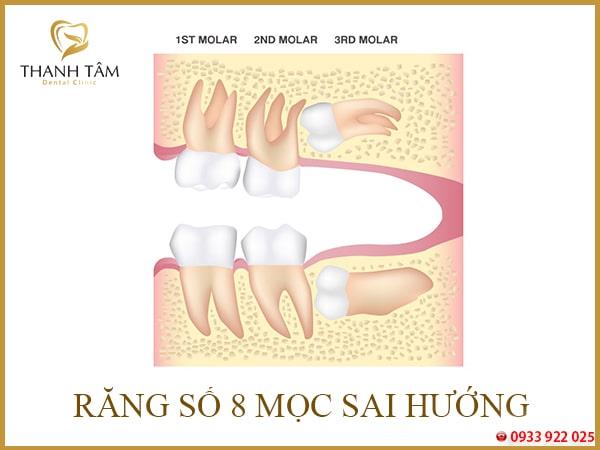 biến chứng sau khi nhổ răng số 8