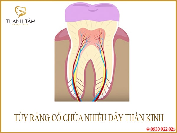 Răng sâu ăn vào tuỷ