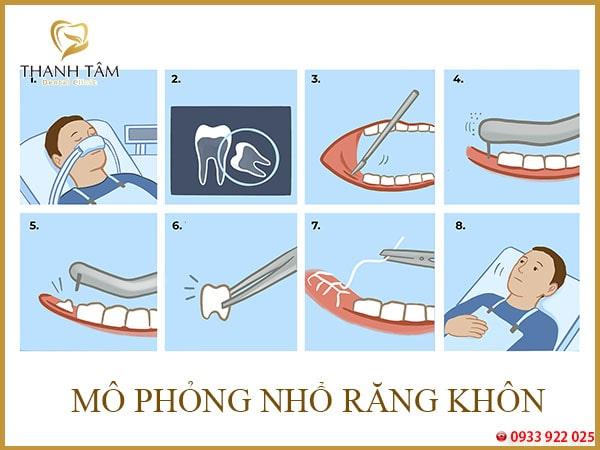 Cách bớt đau khi mọc răng khôn