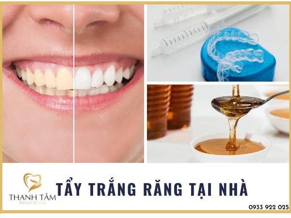 Phương pháp cải thiện màu sắc răng an toàn