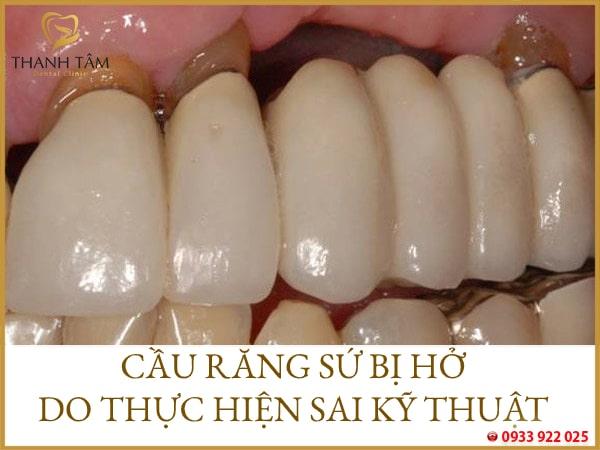 Cầu răng sứ bị hở